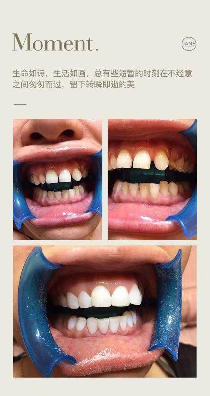 洛阳美牙培训加盟 贴心服务 郑州牙美康生物科技供应