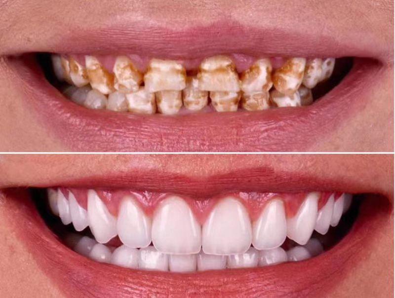 合肥美牙机构 和谐共赢 郑州牙美康生物科技供应