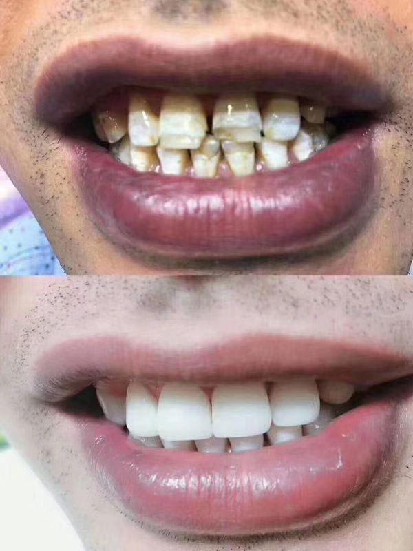 安阳陶瓷牙案例 信息推荐 郑州牙美康生物科技供应