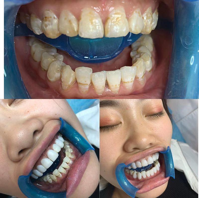 许昌美牙培训加盟 欢迎来电 郑州牙美康生物科技供应