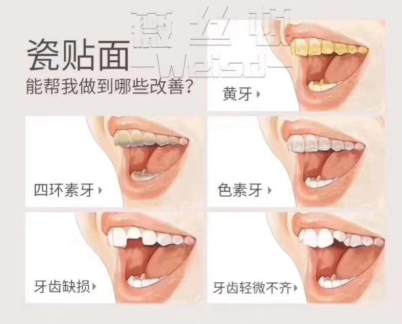 三门峡美牙培训 诚信服务 郑州牙美康生物科技供应