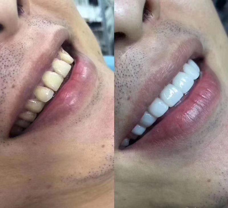 牙牙海东洗牙加盟,牙