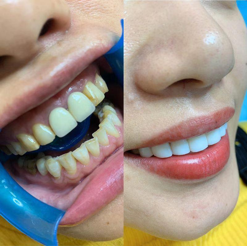 安阳美牙培训加盟 抱诚守真 郑州牙美康生物科技供应