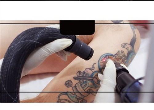 云南皮肤修复洗彩绘洗纹身 五华区东刺人体彩绘供应