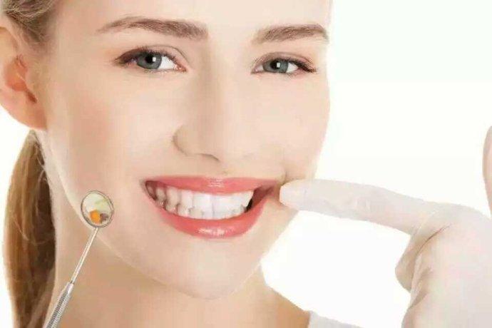 江西专业美牙价格 欢迎咨询 苏州美之袖形象设计咨询服务供应