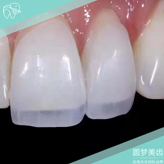 广州牙齿变白培训学费多少「深圳市圆梦生物科技供应」