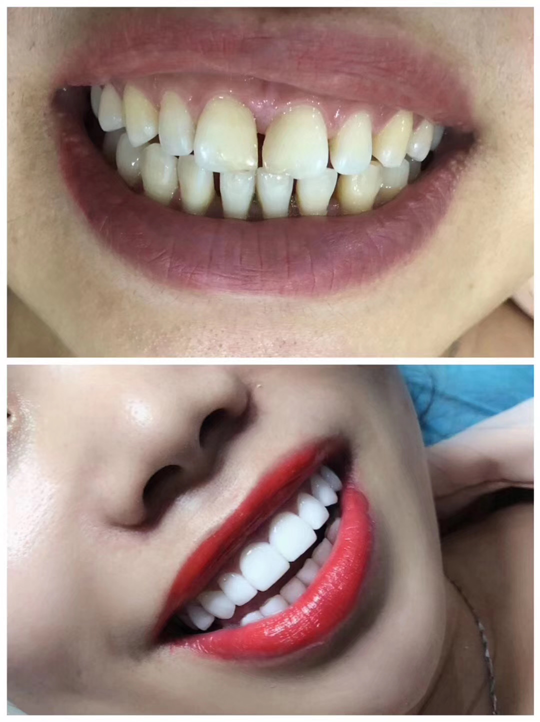 北京美牙技術培訓價格多少「深圳市圓夢生物科技供應」