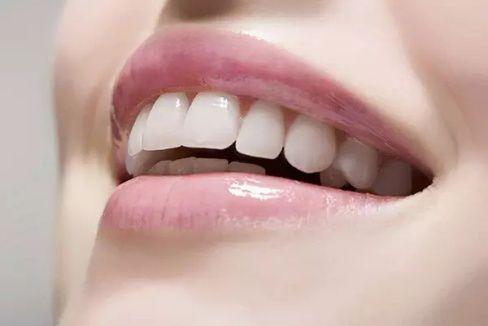 纳米树脂美牙培训图片「深圳市圆梦生物科技供应」