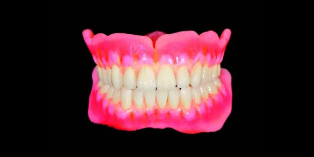 四川固定義齒生產「成都派瑞義齒供應」