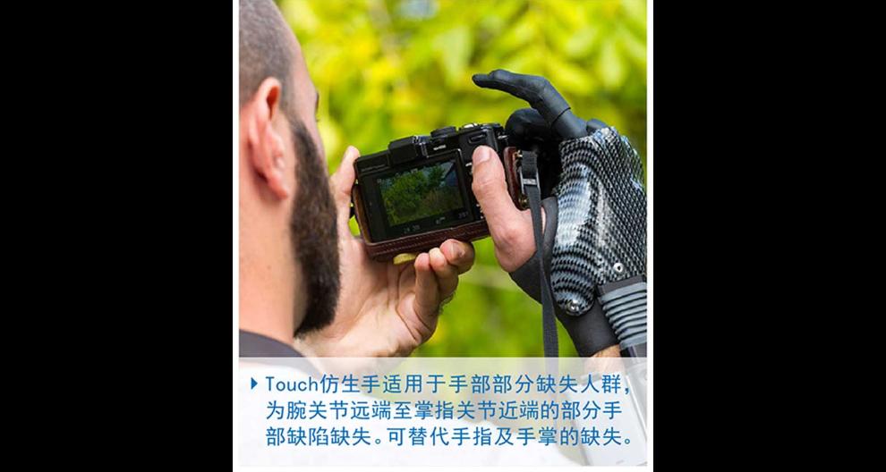上海智能假肢定制 抱诚守真 上海精博假肢矫形器供应