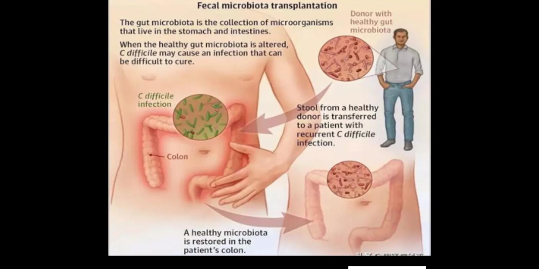 山東腹瀉使用菌群移植專家共識 歡迎咨詢「上海沃本生物科技供應」