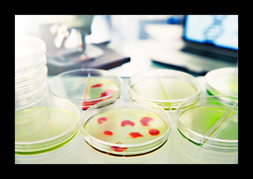 将灭过菌的培养皿要烘干多久,培养皿