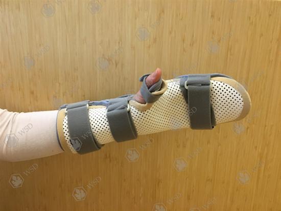骨折高分子矫形绷带多少钱 推荐咨询「青岛维思顿供应」