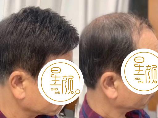 合肥女士假发片订制,假发