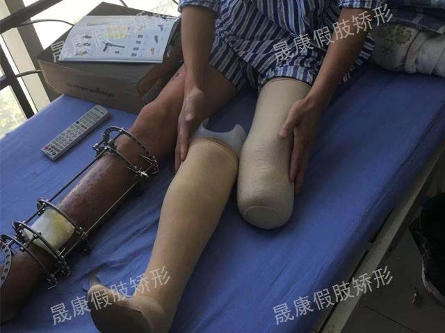 昆明功能性假肢公司 云南晟康醫療科技供應