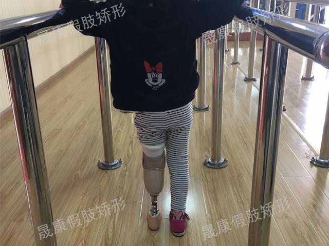 昆明3D假肢更換 云南晟康醫療科技供應