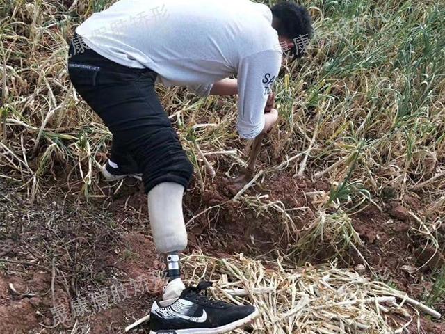 昆明右小腿假肢公司 云南晟康假肢矫形器公司供应