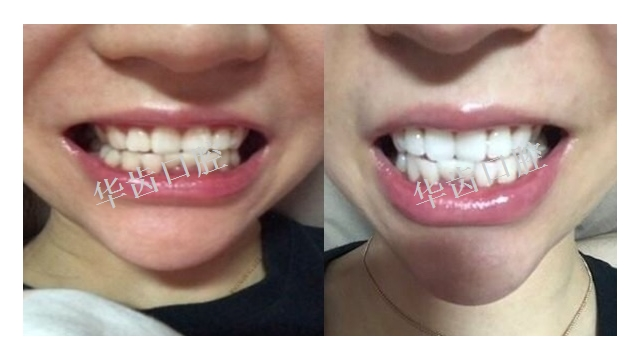 百色專業牙齒美白質量推薦 真誠推薦「華齒口腔供應」